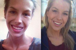 Antonia Eriksson antes y después Foto:Instagram. Imagen Por: