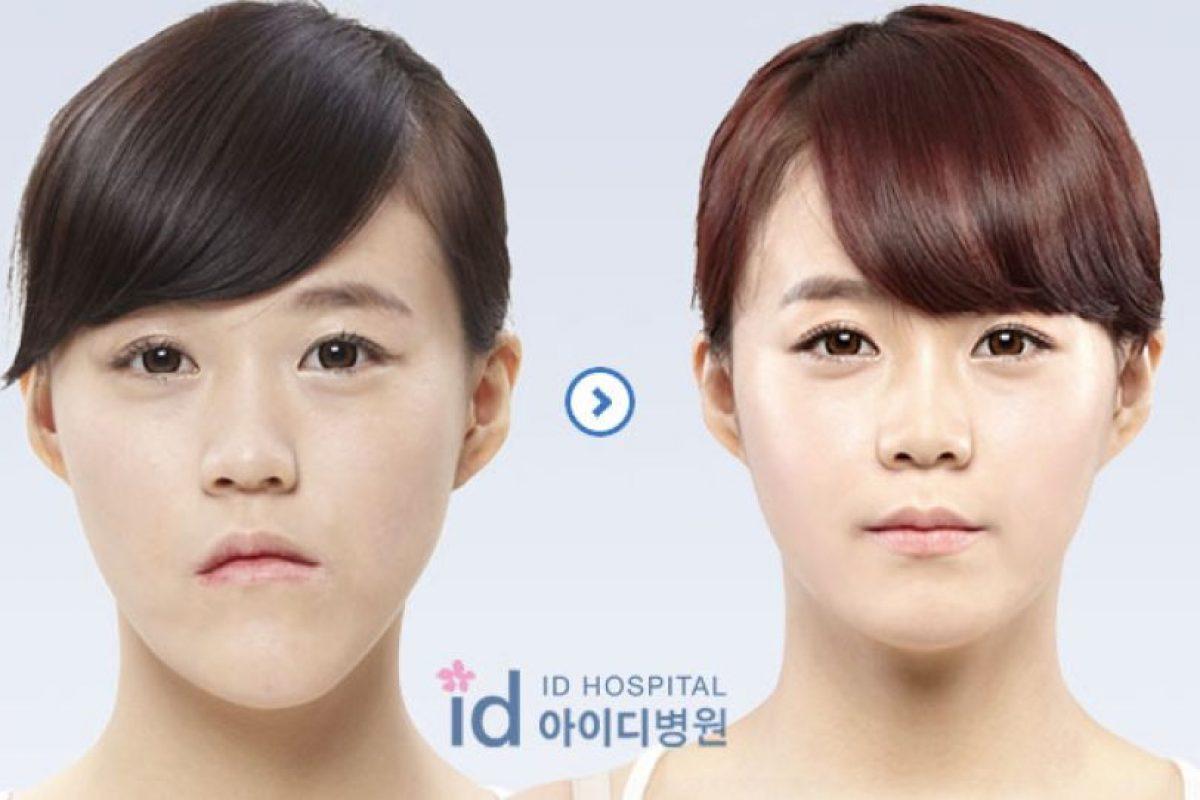 Foto:ID Hospital. Imagen Por: