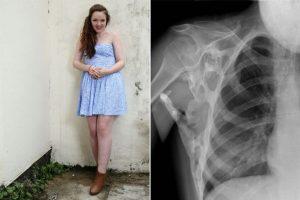 La británica Seanie Nammock (17 años) fue diagnosticada hace seis años del Síndrome de la estatua humana (FOP) Foto:Facebook. Imagen Por: