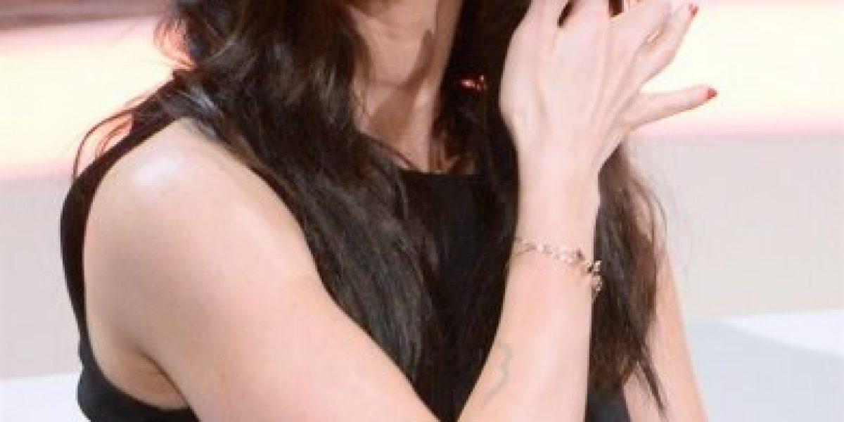 Acusan a Megan Fox de usar botox en su rostro