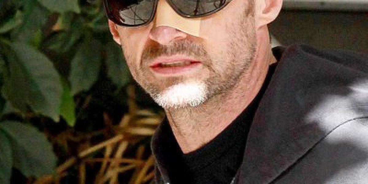 Hugh Jackman nuevamente se somete a operación por cáncer a la piel