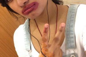 Hay quienes se burlan de su método inicial para agrandar sus labios Foto:Twitter. Imagen Por: