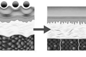 Así funciona dentro del tejido. Foto:Cellulite Crushers. Imagen Por: