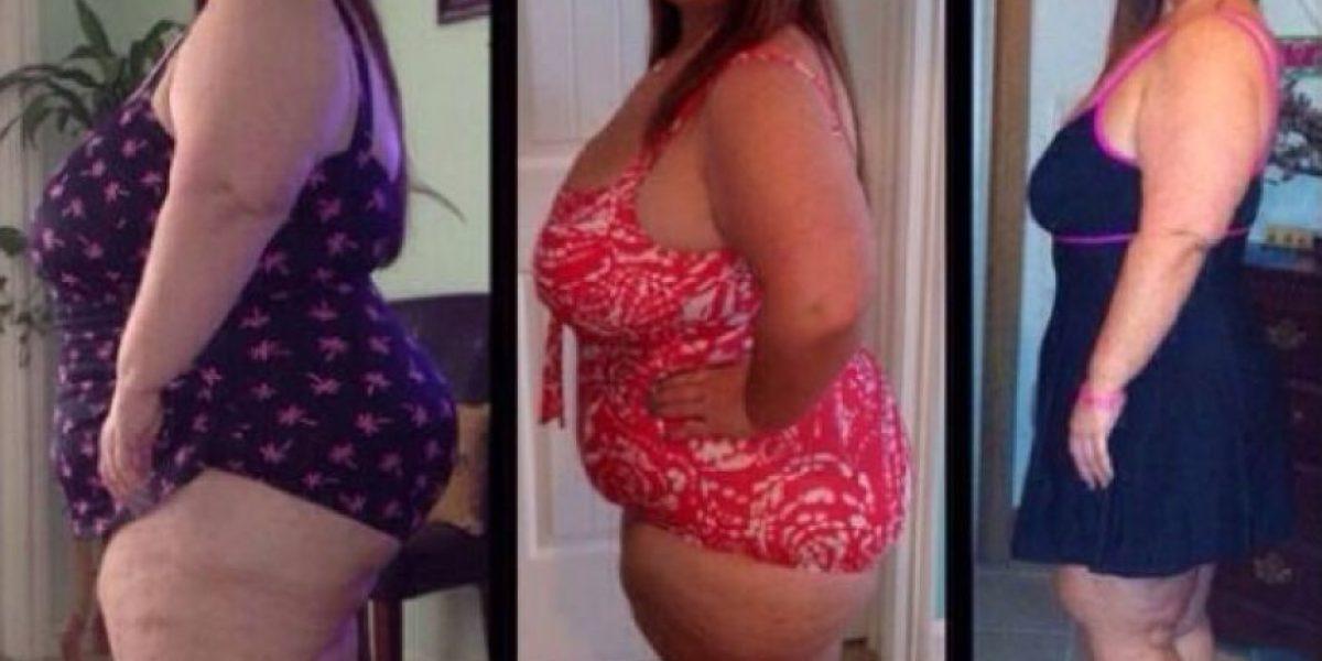 FOTOS: El antes y después de esta mujer que perdió 68 kilos
