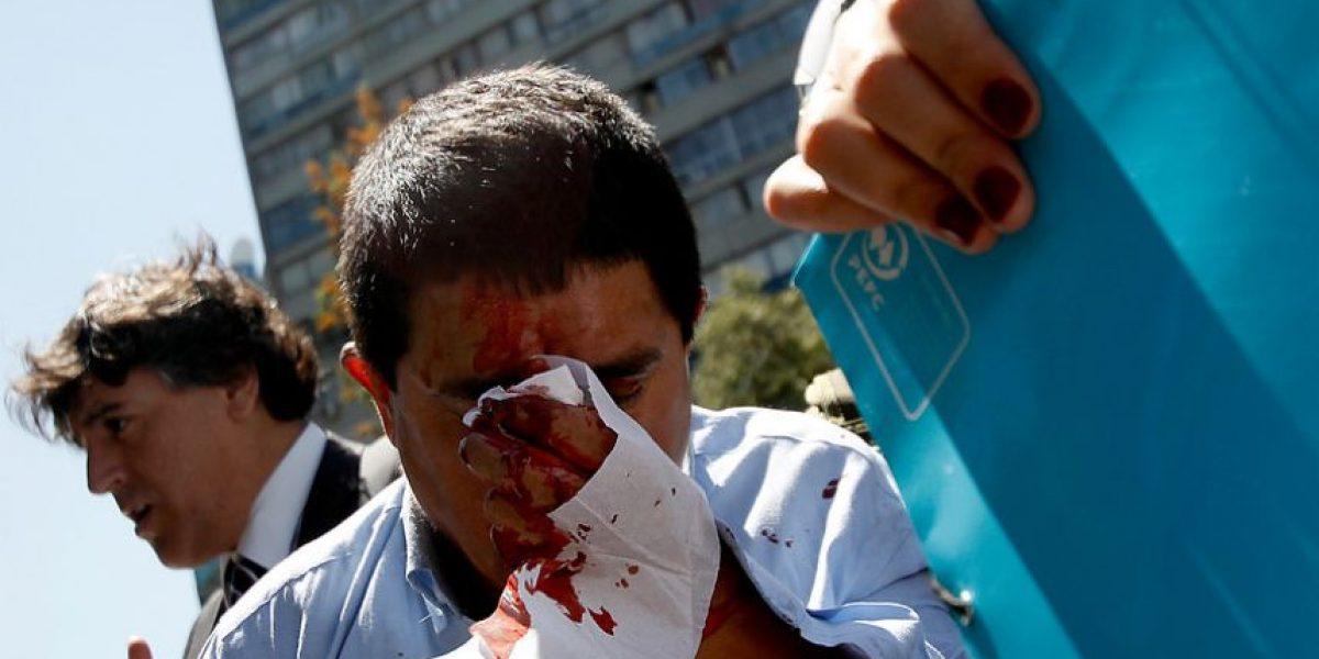 Fotos: Feroz golpiza se llevó delincuente que intentó asaltar a peatón en Providencia
