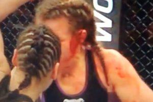 Eye ganó la pelea por knockout técnico en el segundo round Foto:Youtube: Ed Marchese. Imagen Por: