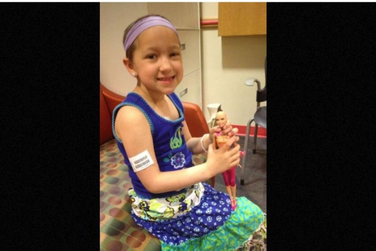 """Mattel sacó la línea especial """"Ella"""", una Barbie calva por los efectos de la quimioterapia. Así representaba a las niñas con cáncer y les daba motivación para ver su propia belleza. Foto:Ella/Facebook. Imagen Por:"""