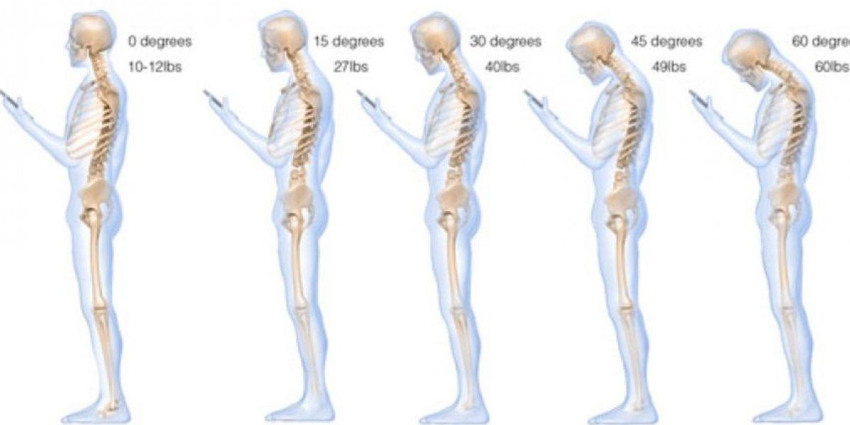Esta es la postura adecuada para mirar el celular y evitar dolores de cuello