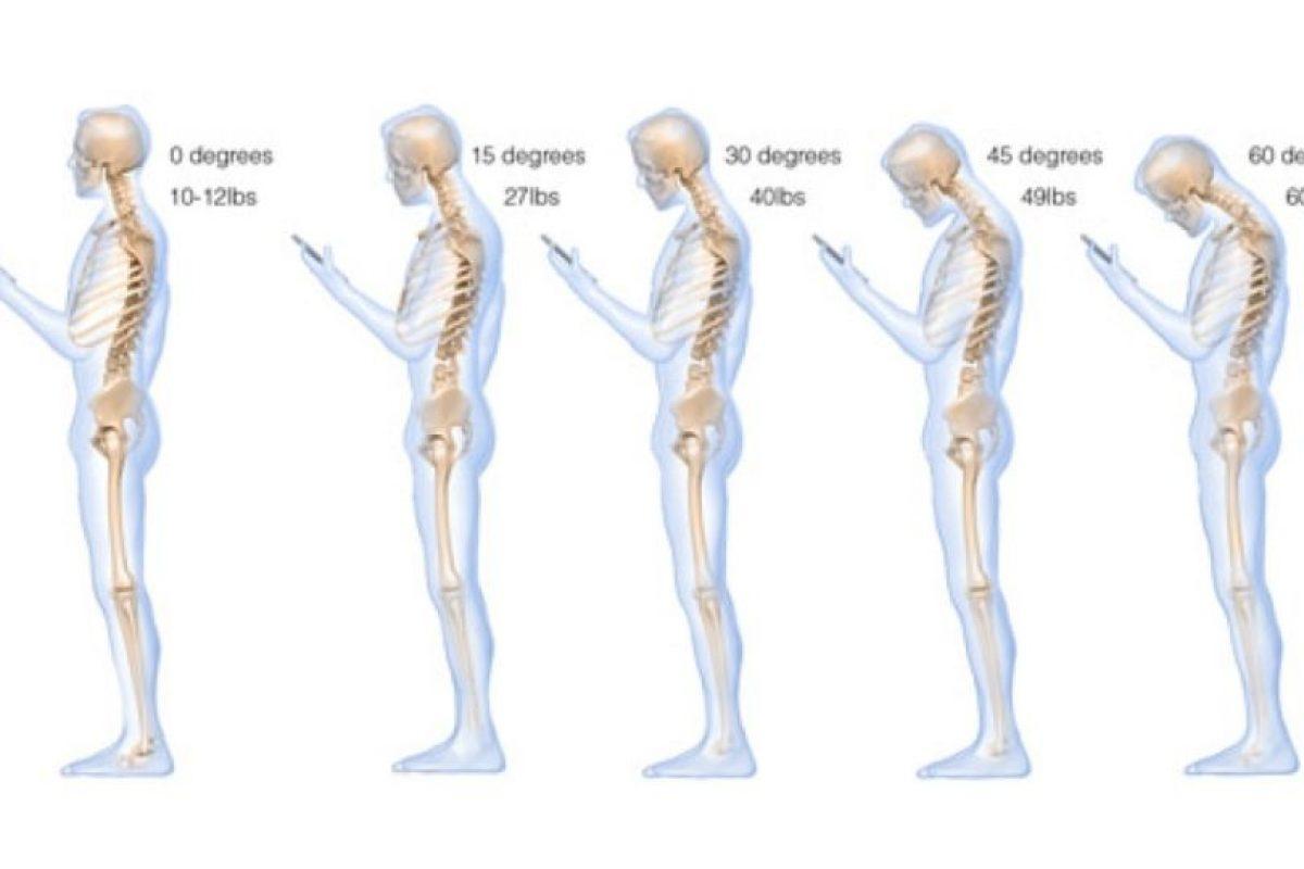 La postura adecuada, según Hansraj, es levantar el dispositivo con las manos, sin bajar la cabeza. Foto:Surgicaltechnology.com. Imagen Por: