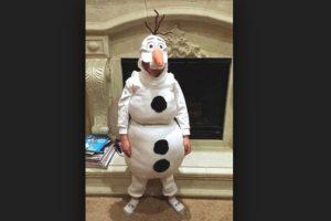 Olaf no se hizo cirugía de piel. Foto:Imgur. Imagen Por: