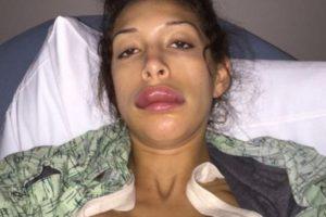 Pero así quedó luego de inyectarse más sustancias en los labios. Foto:Farrah Abraham/Twitter. Imagen Por:
