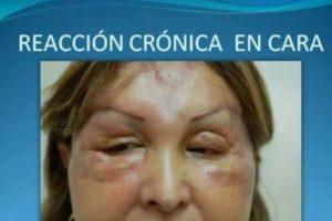 Esto puede suceder si hay reacción alérgica. Foto:Doctor Billy Spence/Youtube. Imagen Por: