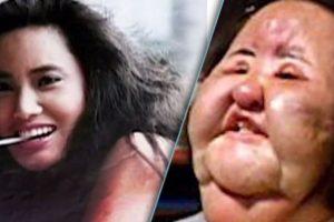 Ni hablar de la pobre Hang Mioku, quien desde los 28 años era adicta a las cirugías. A los 50 y ante la negativa de su doctor para hacerle una más, se inyectó aceite de cocina. Se desfiguró. Foto:Smosh. Imagen Por: