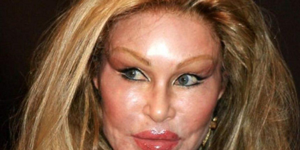 FOTOS: ¡Espantosas! 33 horribles imágenes que los harán huir de una mala cirugía plástica