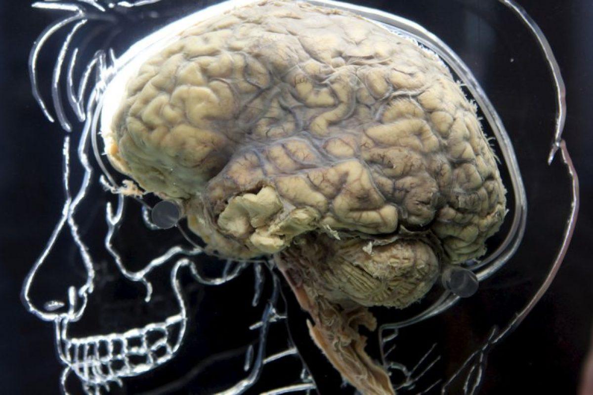 Las personas que desarrollaron esta enfermedad tuvieron síntomas previos como irritabilidad, apatía, cambios de apetito y depresión. Foto:Getty Images. Imagen Por: