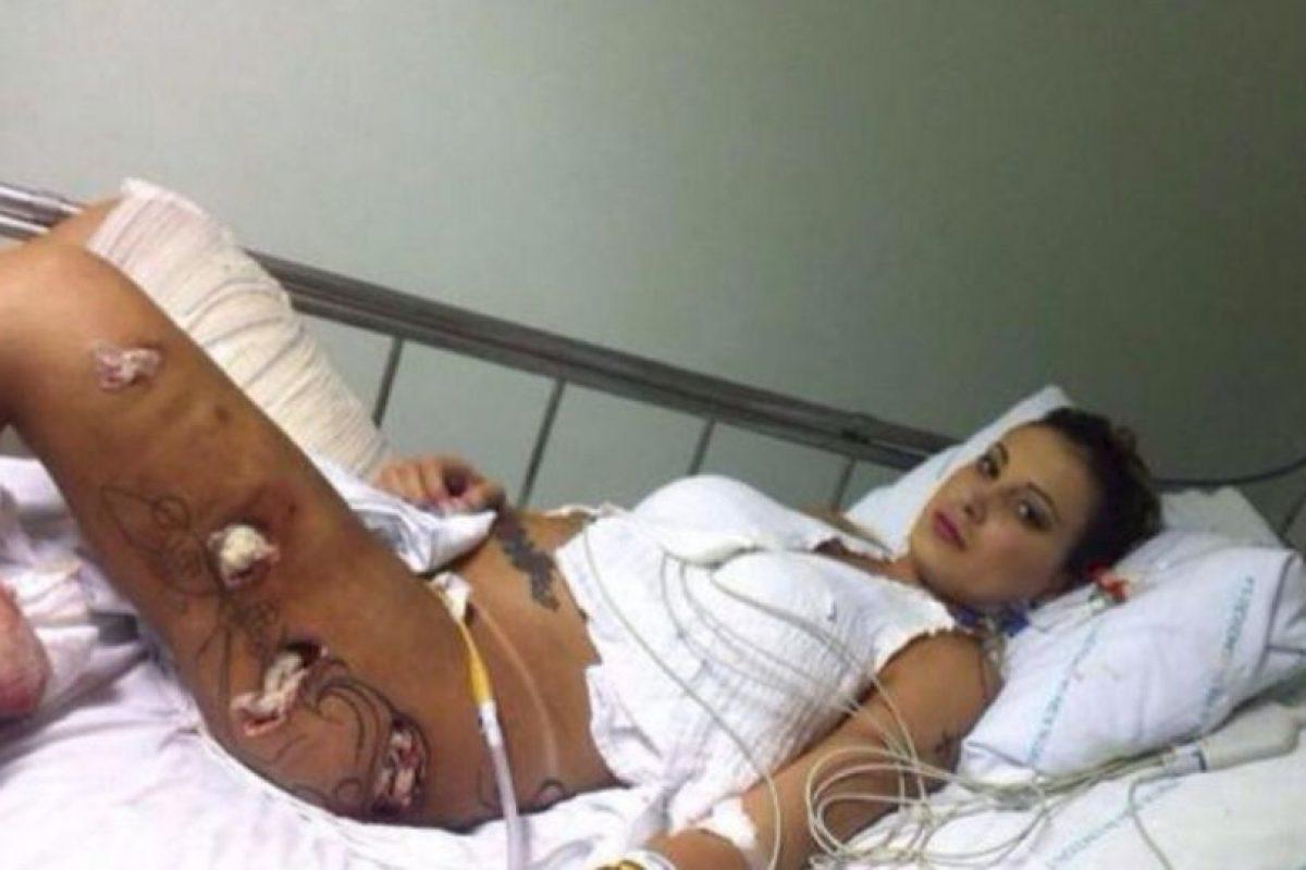 En los últimos días fue noticia porque una de sus piernas se infectó debido a una cirugía de hidrogel Foto:Instagram: @andressaurach. Imagen Por: