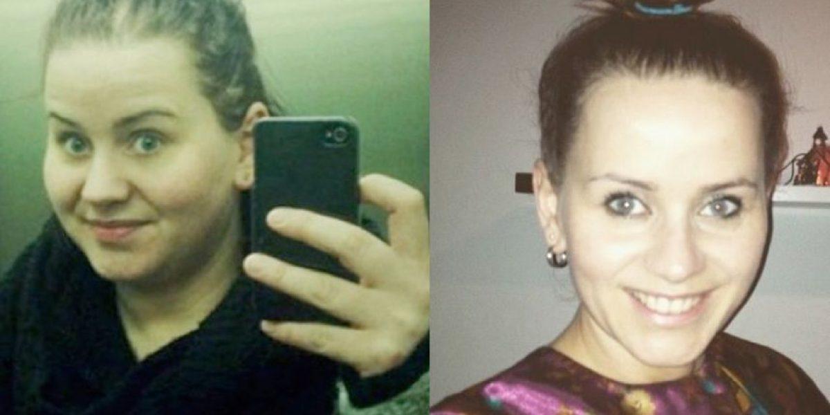 ¡Insólito! Mujer perdió 50 kilos con tal de lucir mejor en sus selfies