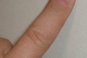"""""""La sorpresa"""" (The Shocker): Los dedos de una persona se insertan en los genitales y la parte anal de su compañero. Foto:Wikipedia. Imagen Por:"""