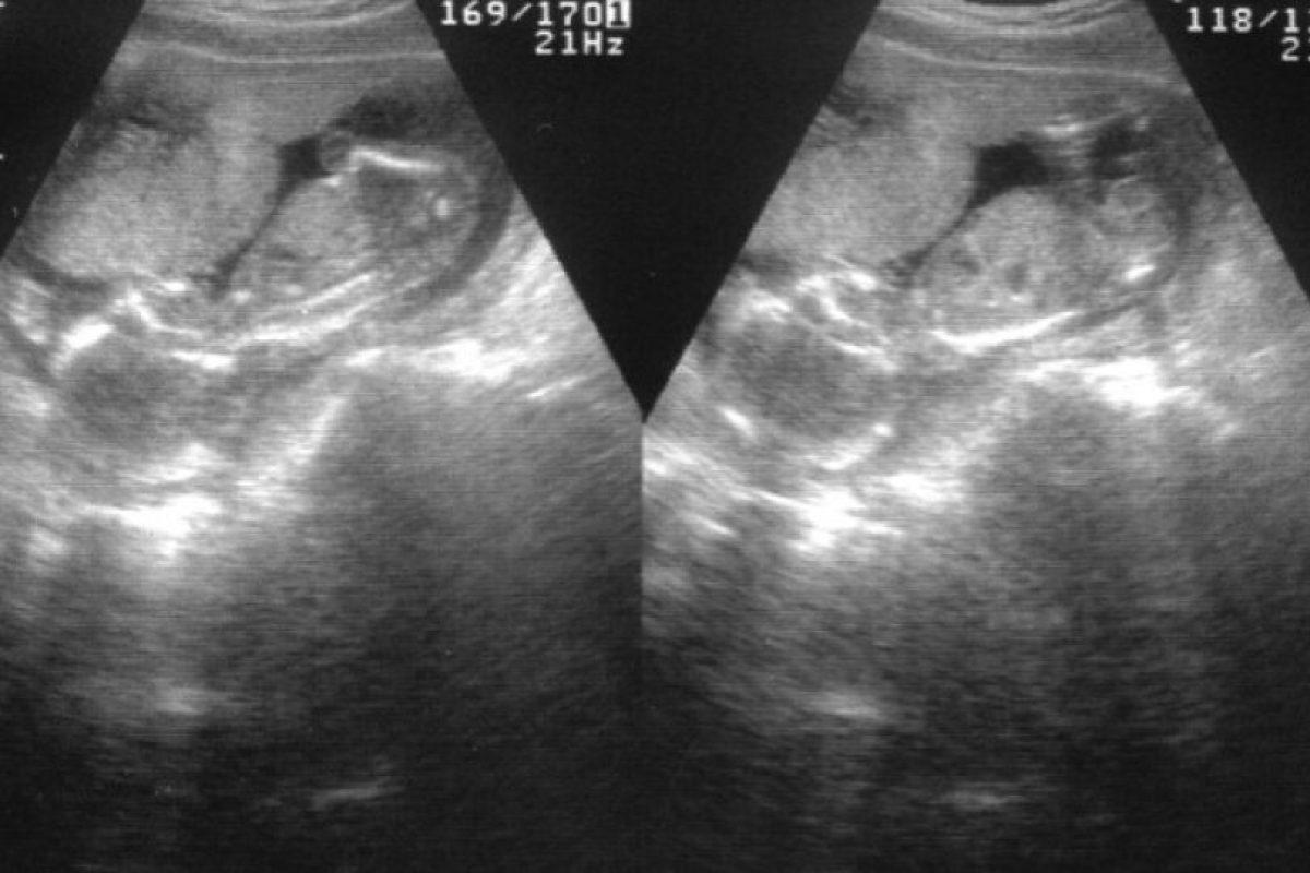 Es tejido humano; pero no se le puede considerar un ser humano. Es un caso raro de gemelos siameses. Foto:Wikipedia. Imagen Por: