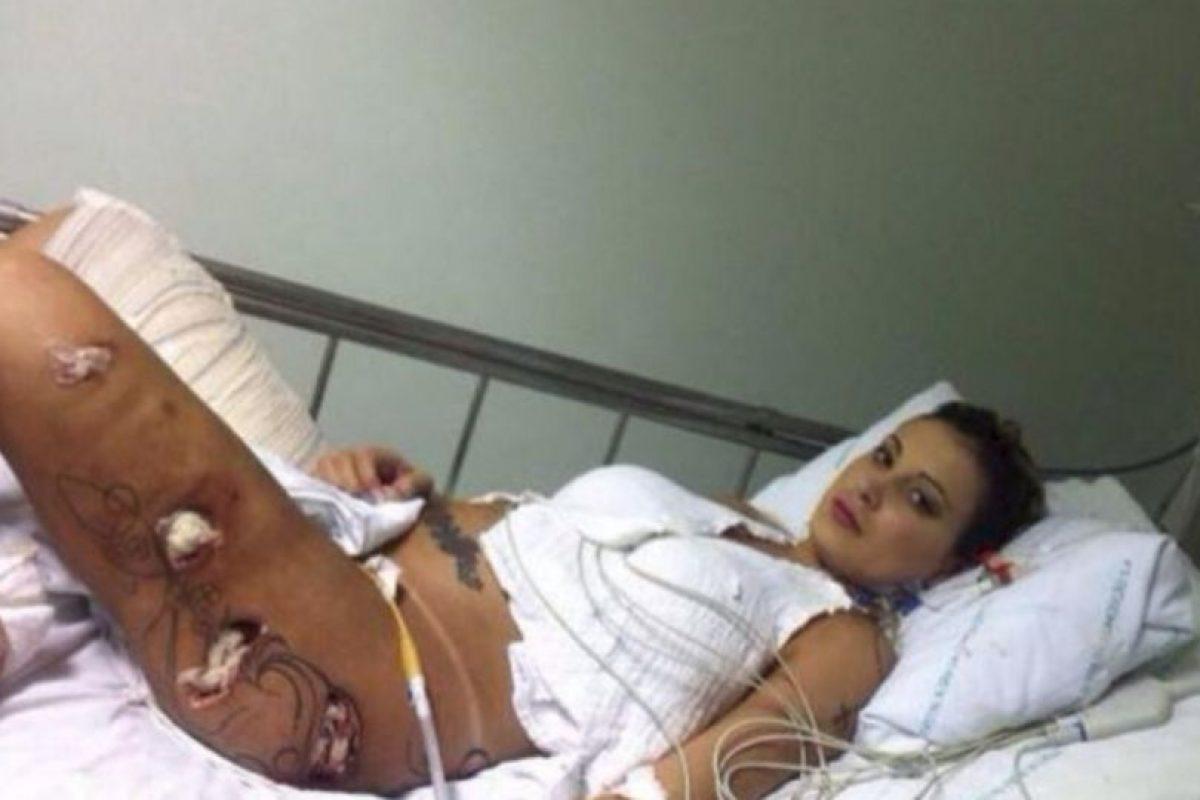 Sufrió una grave infección ocasionada por inyectarse hidrogel en las piernas Foto:Instagram @andressaurachoficial. Imagen Por:
