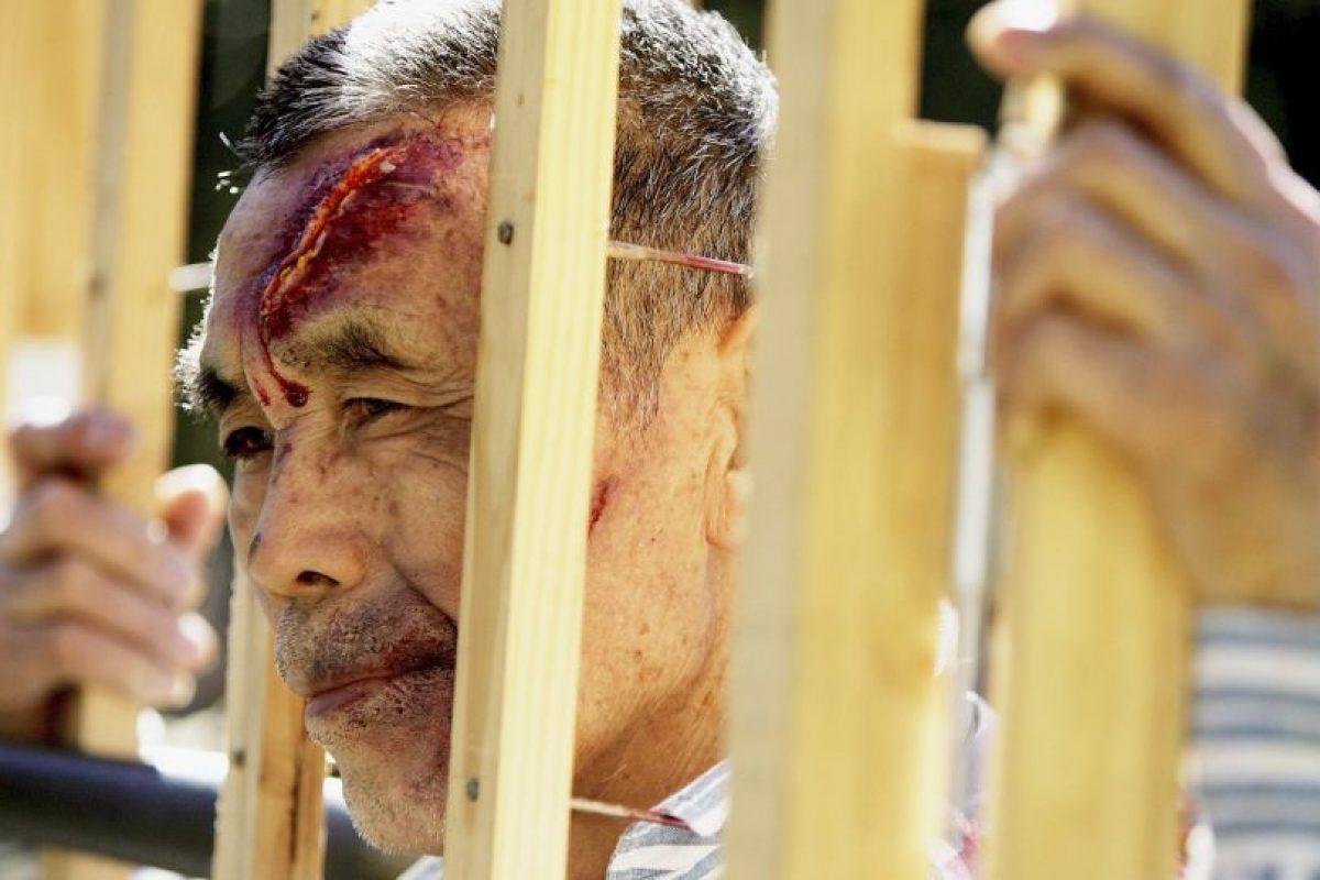 América cuenta, a nivel regional como nacional, con algunas de las leyes y los mecanismos contra la tortura más sólidos del mundo. Foto:Getty Images. Imagen Por: