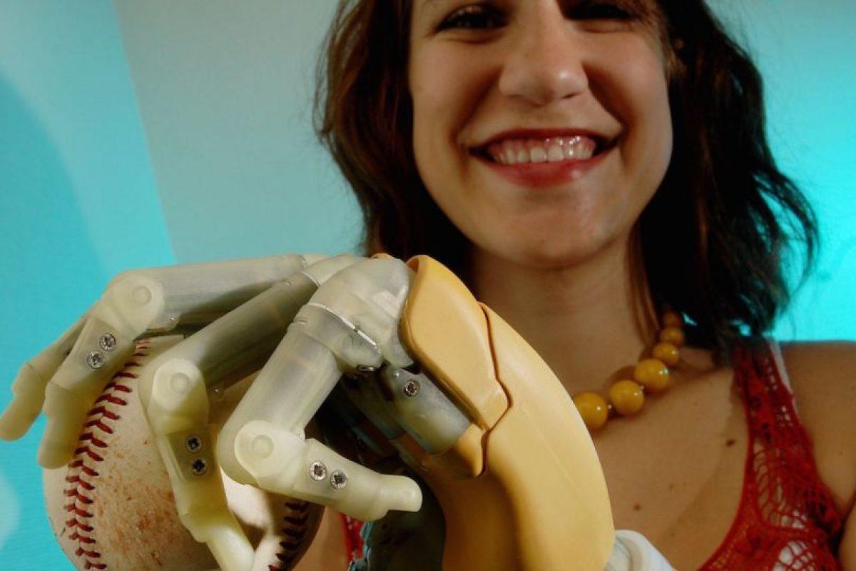 Google ha trabajado en dispositivos biónicos y prótiesis. Foto:Getty Images. Imagen Por: