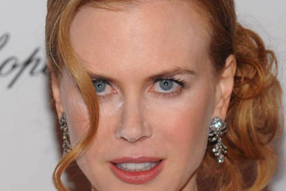 Lo mismo pasó con Nicole Kidman. A ella le quedó un gran pedazo al lado de la nariz. Foto:Getty Images. Imagen Por: