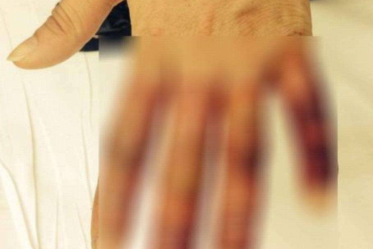 Ella relató todo en Imgur. Casi pierde sus dedos por estar borracha y sin alguien a quién contactar. Foto:Imgur. Imagen Por: