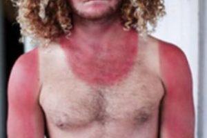 Según datos de la Organización Mundial de la Salud (OMS) señalan que cada año se triplica en el mundo el número de casos de cáncer de piel. Foto:Bunkerpop. Imagen Por: