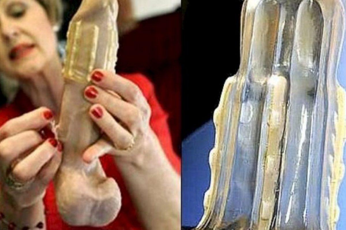 Creado en 2011 por la doctora sudafricana Sonette Ehlers, es un condón dentado que atrapa el pene del atacante. Foto:Flickr. Imagen Por: