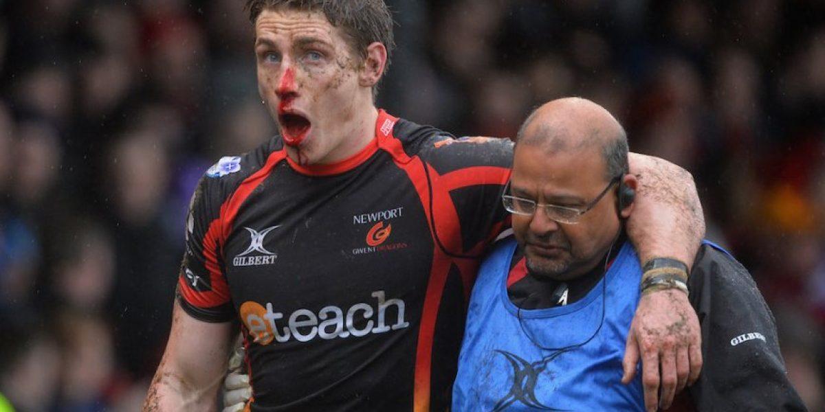 FOTOS: ¡Qué dolor! Así fue la espantosa lesión de este rugbista