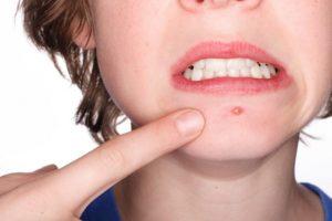 2. Utilizar productos para la piel que no bloqueen los poros Foto:Tumblr. Imagen Por: