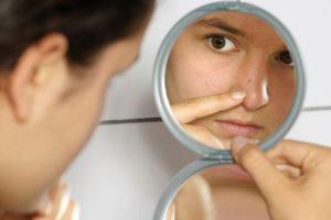 3. Aplicar gel y spray en el cabello lo más lejos de la cara, ya que estos productos contienen químicos y aceites que pueden empeorar la situación de acné. Foto:Wikimedia. Imagen Por: