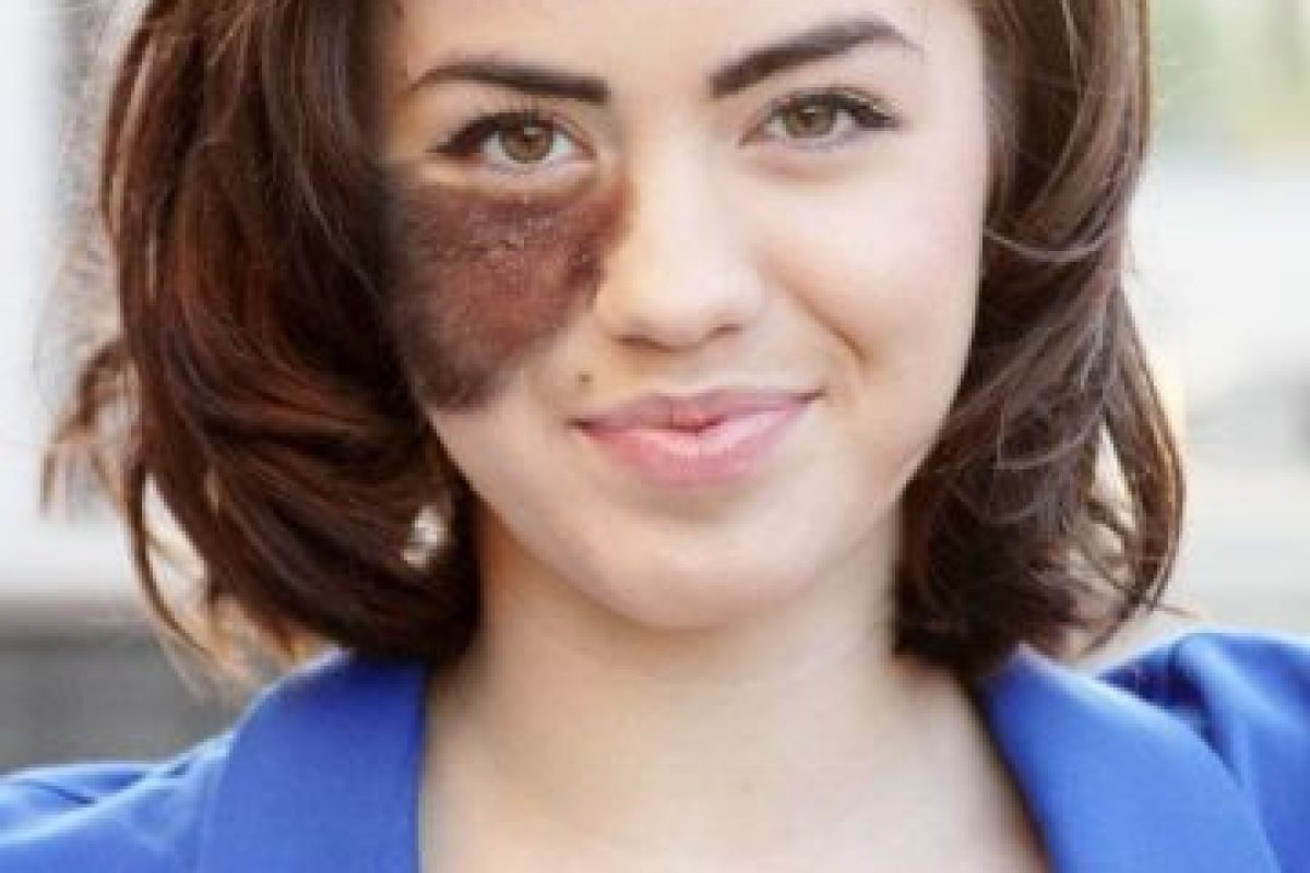 La cirugía estética que pudieron realizarle cuando ella era pequeña le iba a dejar grandes cicatrices. Foto:Vía Facebook/cassandranaud. Imagen Por: