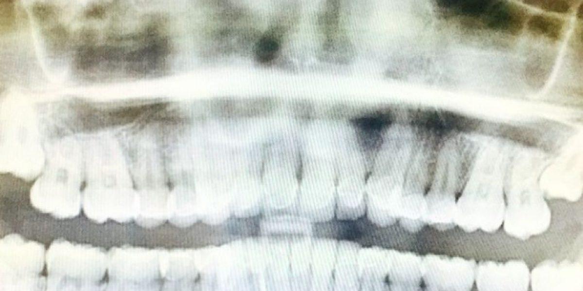 FOTOS: Extraen con urgencia molares de Miley Cyrus