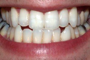 13. Cuida nuestros dientes Foto:Wikipedia. Imagen Por: