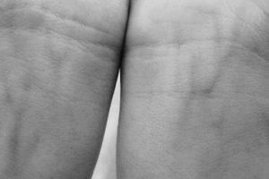 15. Aliado contra la creación de trombos en a sangre. Foto:Pinterest. Imagen Por: