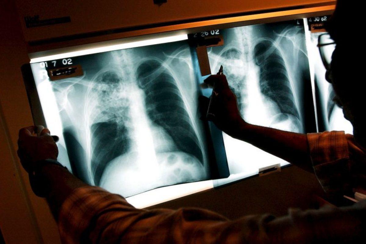 Esta enfermedad es la segunda causa de muerte después del sida, según datos de la Organización Mundial de la Salud (OMS). Foto:Getty. Imagen Por: