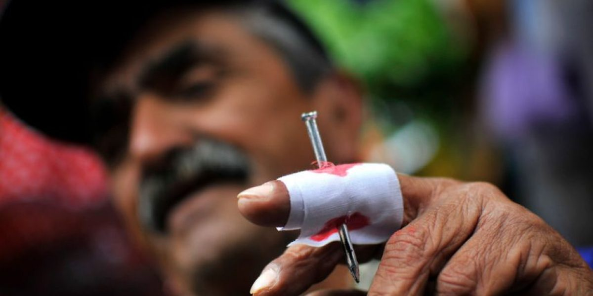 ¿Cuánto me pagan si me corto un dedo en un accidente laboral?
