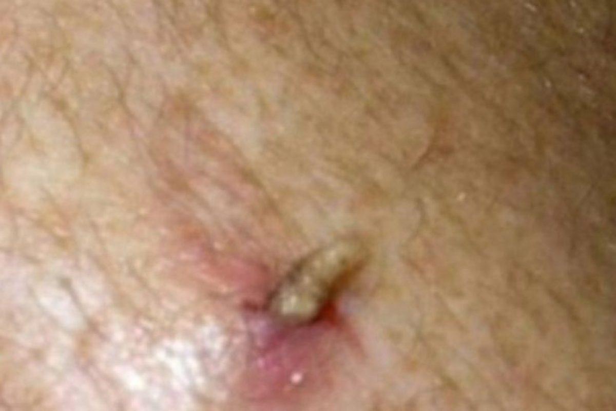 El moscardón humano también se desarrolla dentro de las personas, saliendo como un gusano. Foto:vía Youtube. Imagen Por: