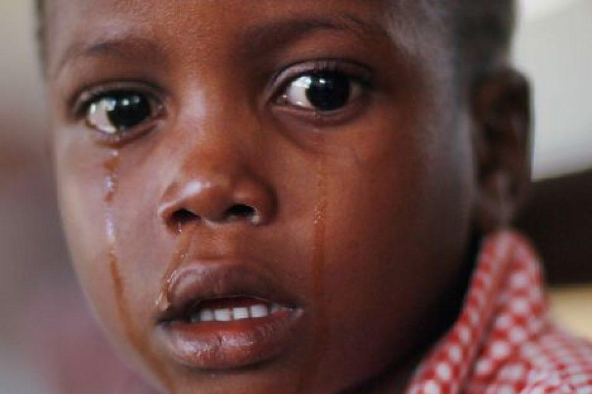 2. Cólera- Foto:Getty Images. Imagen Por: