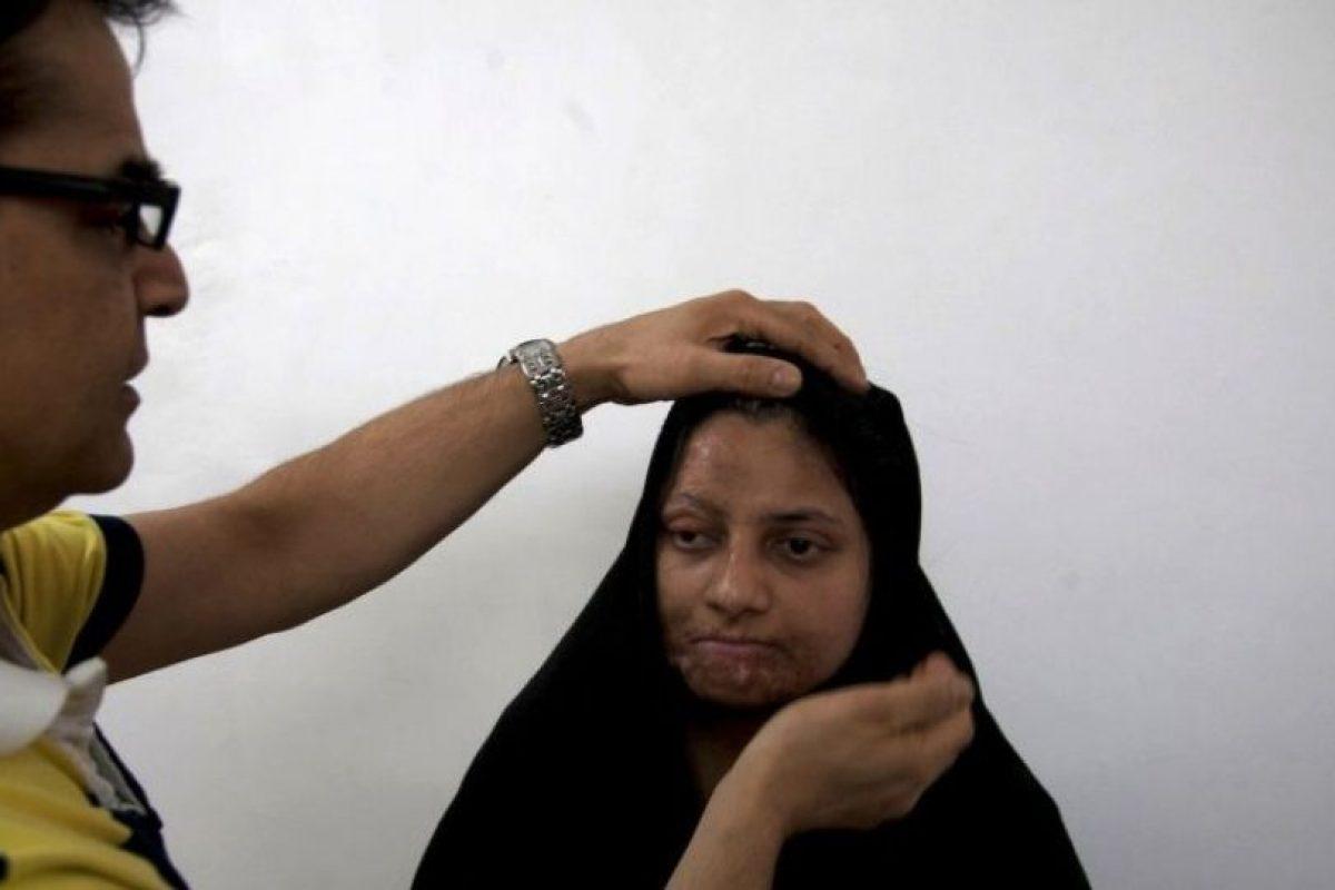3. La noble ayuda de este cirujano plástico a mujeres atacadas con ácido Foto:AP. Imagen Por: