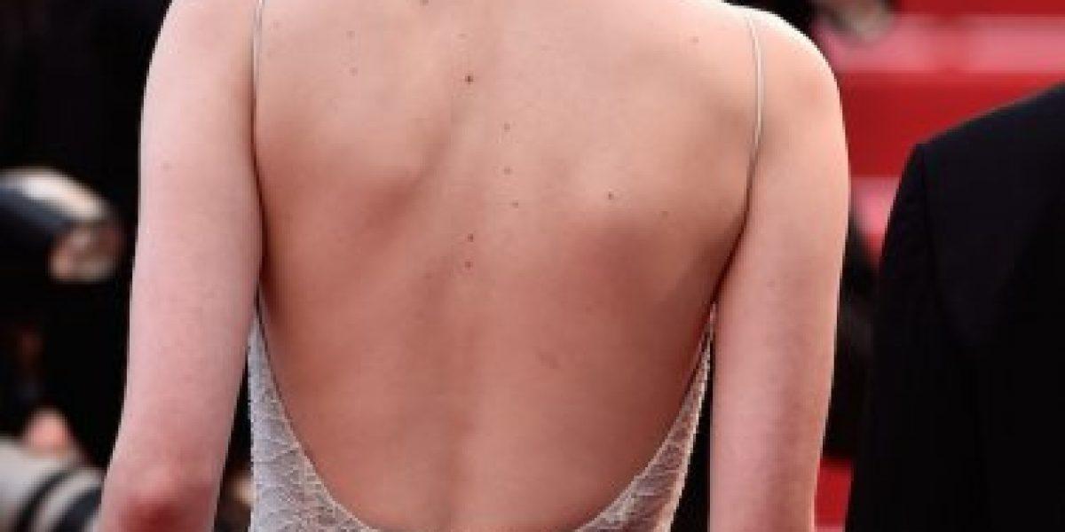 CANNES: El vestido de Emma Stone falló y esto fue lo que sucedió