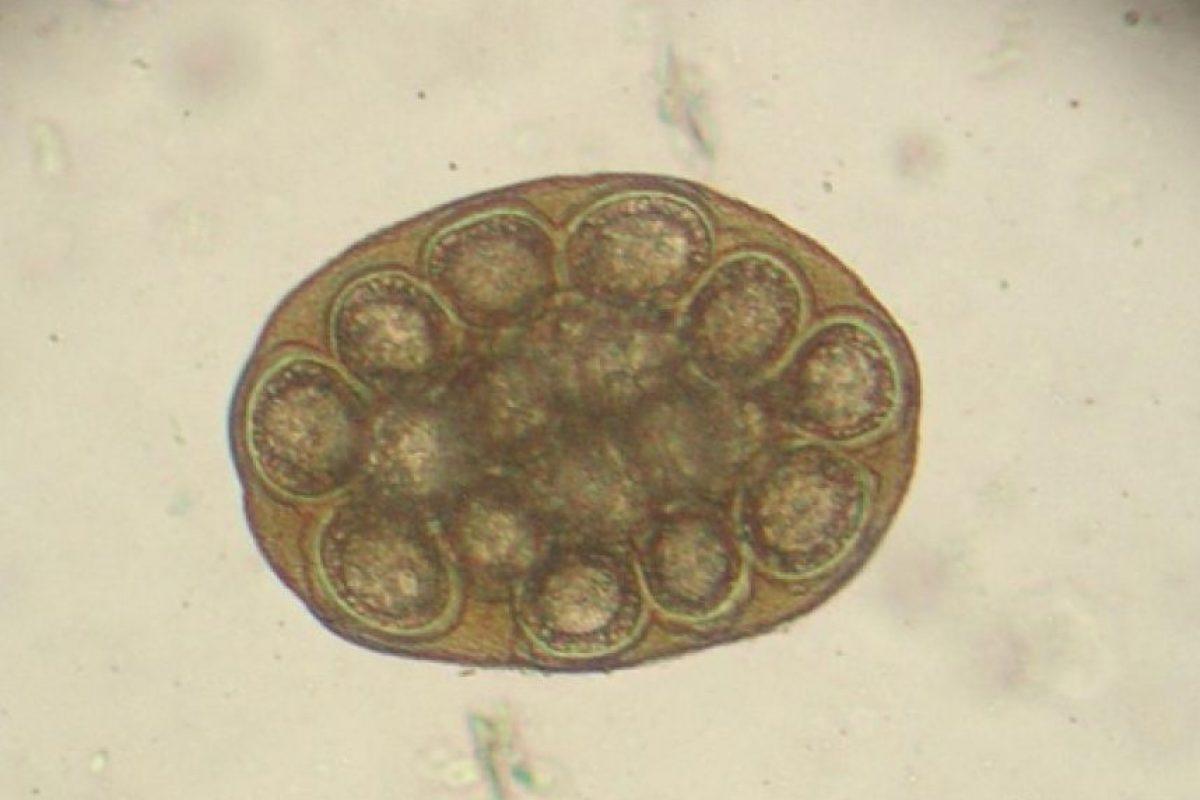 5. Lombrices instestinales Foto:Wikimedia. Imagen Por: