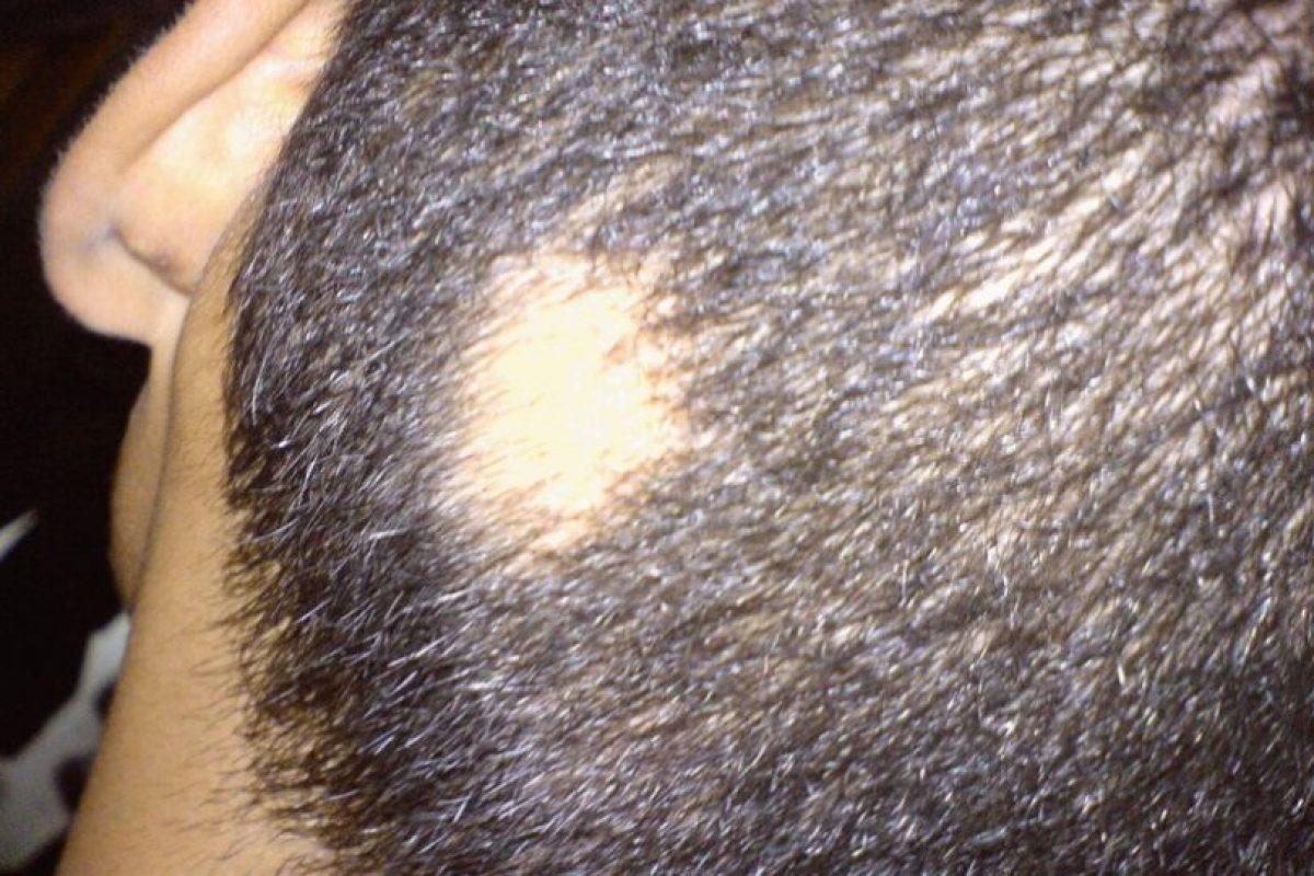 Es un hongo que se encuentra en la cabeza o en los muslos, pies o uñas. Foto:Wikimedia. Imagen Por: