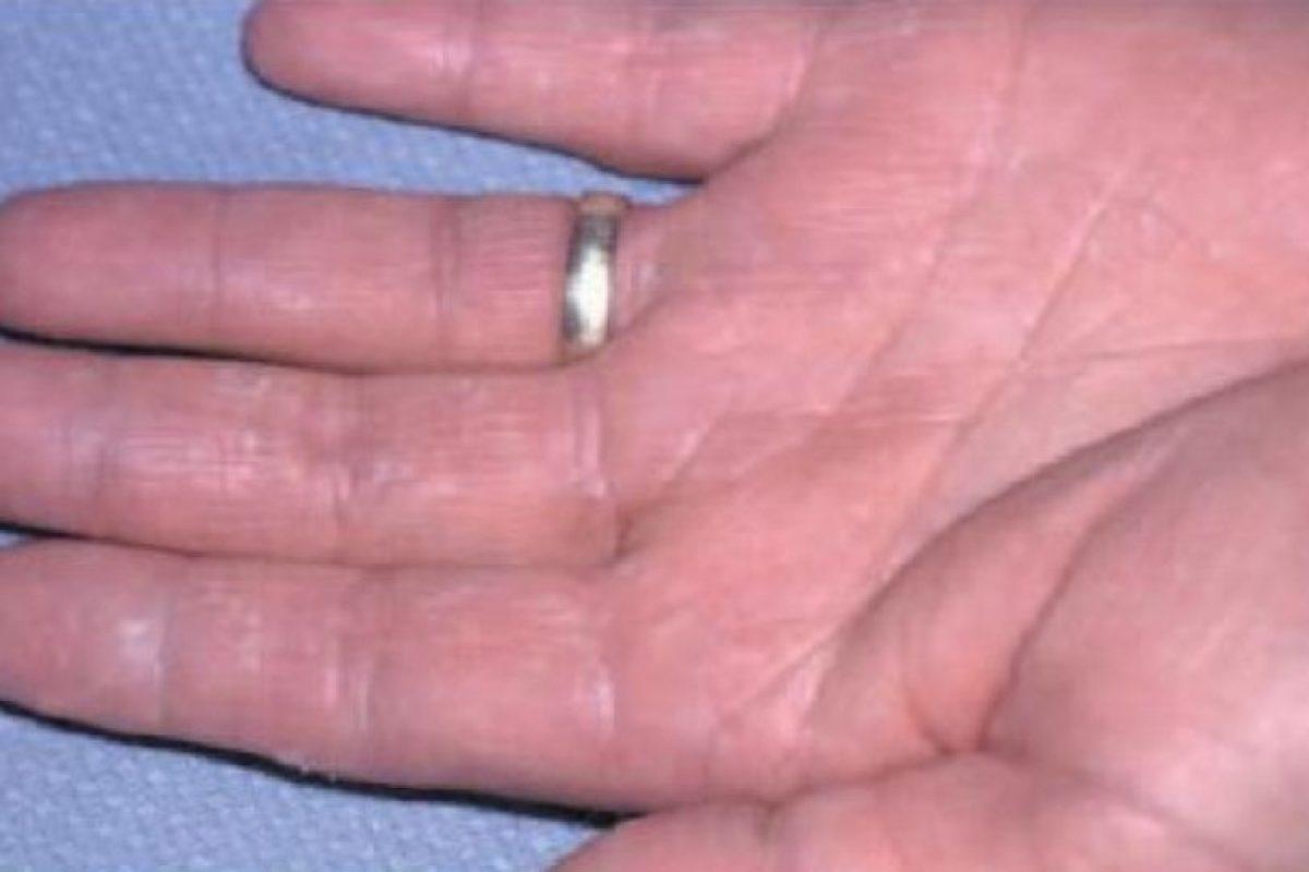 Este parásito afecta manos y palmas. Algunos de los síntomas de este tipo de infección son: Foto:Consultantlive. Imagen Por: