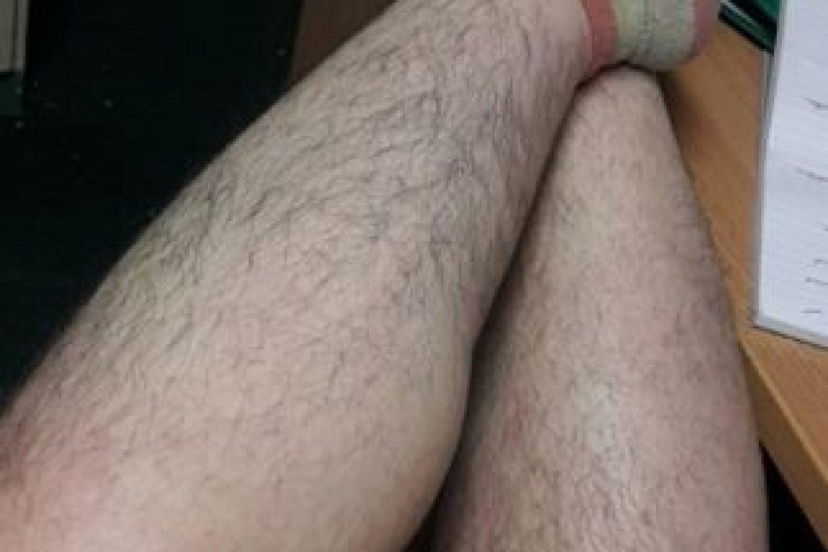 Se cansó de depilarse y tener vello grueso y puntiagudo Foto:Vía Tab. Imagen Por: