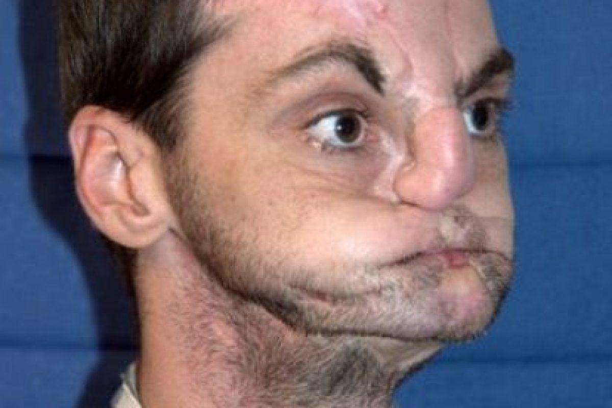 Luego de tres años, Rebeca Aversano, conoció al hombre al que le transplantaron el rostro de su hermano de 21 años, Joshua, quien murió en un accidente. Foto:Vía University of Maryland Medical Center. Imagen Por: