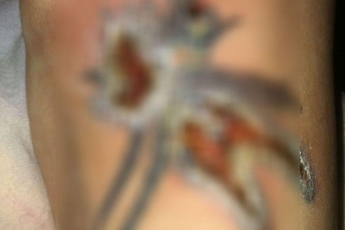 O mucho peor: abre heridas en la piel. Foto:vía Instagram/#infectedtattoo. Imagen Por: