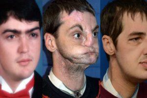 5. Mujer conoce al hombre al que le transplantaron el rostro de su hermano Foto:Vía University of Maryland Medical Center. Imagen Por: